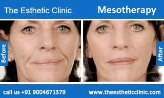 Mesotherapy-treatment-before-after-photos-mumbai-india-1 (5)