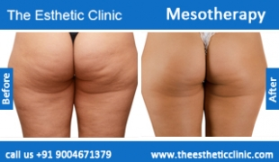 Mesotherapy-treatment-before-after-photos-mumbai-india-1 (1)