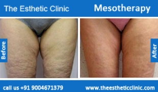 Mesotherapy-treatment-before-after-photos-mumbai-india-1 (4)