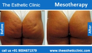 Mesotherapy-treatment-before-after-photos-mumbai-india-1 (6)
