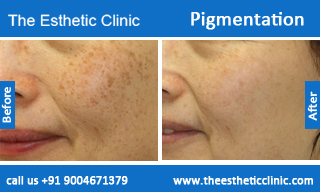 Pigmentation-treatment-before-after-photos-mumbai-india-1 (2)