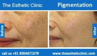 Pigmentation-treatment-before-after-photos-mumbai-india-1 (2)