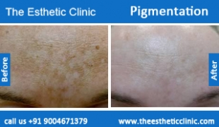 Pigmentation-treatment-before-after-photos-mumbai-india-1 (4)