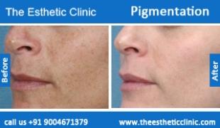 Pigmentation-treatment-before-after-photos-mumbai-india-1 (6)
