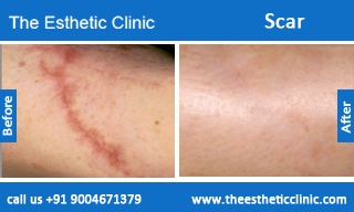 Scars-treatment-before-after-photos-mumbai-india-1 (5)