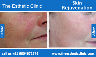Skin-Rejuvenation-treatment-before-after-photos-mumbai-india-1 (4)