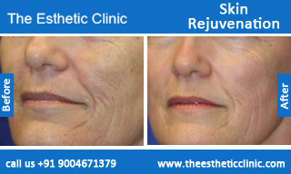 Skin-Rejuvenation-treatment-before-after-photos-mumbai-india-1 (5)