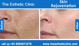 Skin-Rejuvenation-treatment-before-after-photos-mumbai-india-1 (1)