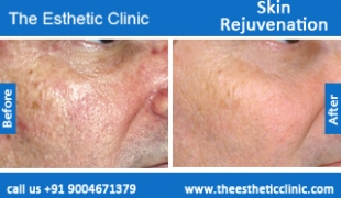 Skin-Rejuvenation-treatment-before-after-photos-mumbai-india-1 (3)