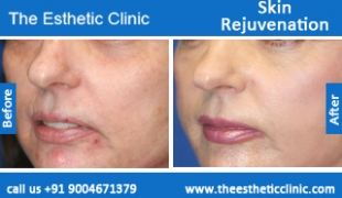 Skin-Rejuvenation-treatment-before-after-photos-mumbai-india-1 (6)