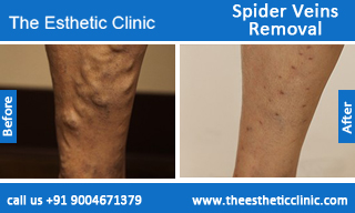 Spider-Veins-Removal-treatment-before-after-photos-mumbai-india-1 (4)