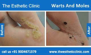 Warts-And-Moles-treatment-before-after-photos-mumbai-india-1 (4)