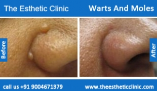 Warts-And-Moles-treatment-before-after-photos-mumbai-india-1 (3)