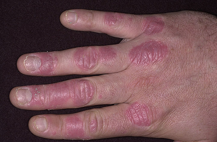 psoriasis treatment in india