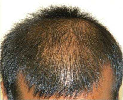 Image result for Best Hair Regrowth
