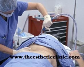Liposuction in Mumbai, India