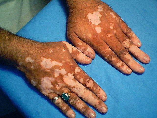 Vitiligo Treatment (Leucoderma) in Mumbai, India