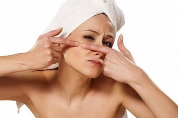 Best Acne (Pimples) Treatment & Acne Scars Laser Removal