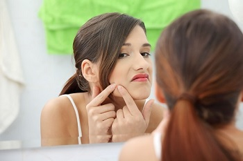Acne Vulgaris (Pimples) & Acne Scars – Causes, Treatment, Remedies, Solutions