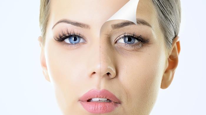 Hyperpigmentation & Melasma Treatment Cure