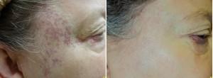 Best Treatment for removing Birthmarks