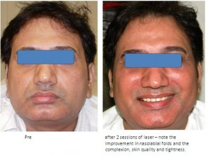 Best Skin Rejuvenation Treatment Mumbai