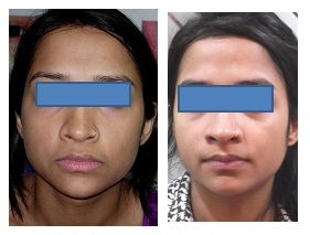 Best treatment for Skin Pigmentation Mumbai