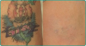 Best Tattoo removal treatment Mumbai