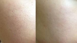 Open Pores treatment Mumbai