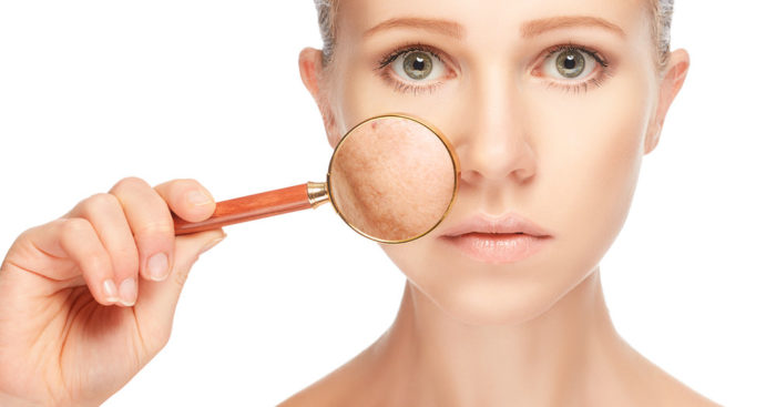 Pros and Cons of Face Skin Pigmentation Treatment