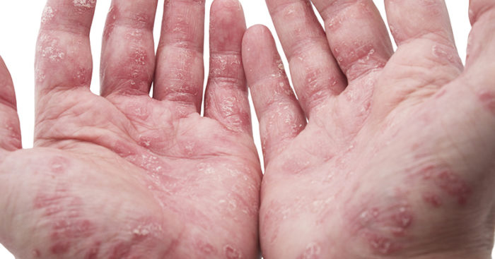 Find the right cure for psoriasis in mumbai India