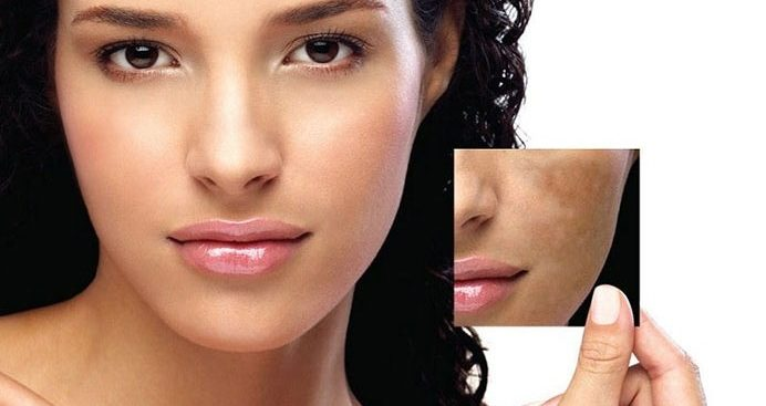 Learn the in depth procedure for treatment of melasma on the face in mumbai, india