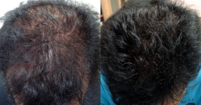 Mesotherapy for hair loss in mumbai, india - The best way to promote hair growth