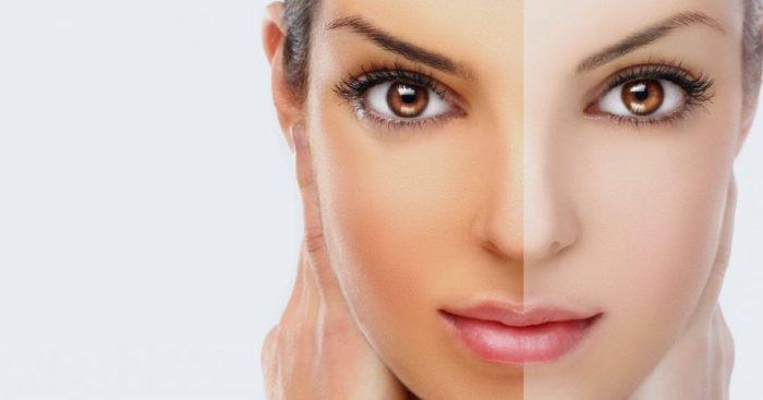 Top 5 Benefits of Undergoing Skin Lightening Surgery in Mumbai india