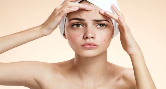 All You Need To Know About the face pimple, Acne Treatment in mumbai India
