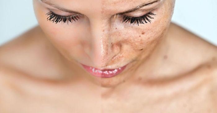 Considering Melasma Treatment Get Rid Of Dark Spots On The Face