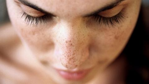 Best Hyperpigmentation treatment in Mumbai