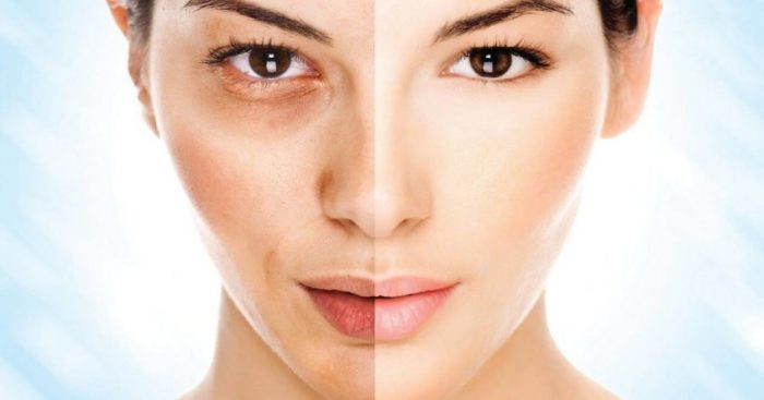 Melasma on the Face - Deciding On which Treatment is the Best One for You