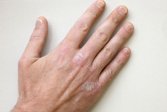 Psoriasis Treatment in India – Its Symptoms, Treatment and Cost