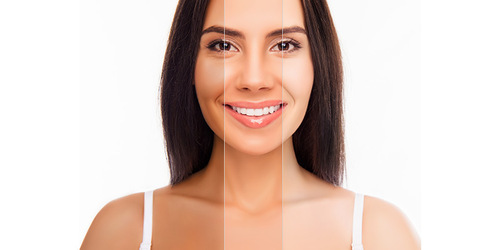 Selecting the best Skin Specialist in Mumbai for Skin Lightening Treatment