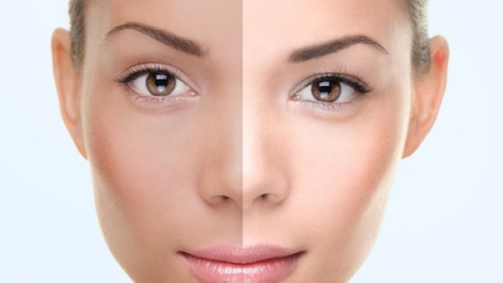 Opt For Skin Lightening Laser Treatment for a Fair and Glowing Skin